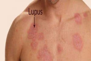 درمان لوپوس پوستی در طب سنتی