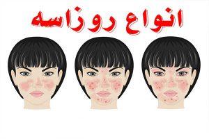 درمان انواع بیماری پوستی روزاسه