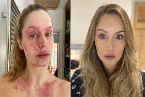 درمان اگزمای صورت