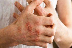 درمان اگزما و عارضه های پوستی