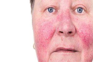 درمان روزاسه و انواع عارضه های پوستی