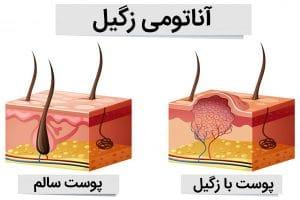 آناتومی بیماری پوستی زگیل